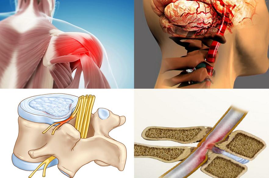 Почему повышается температура при остеохондрозе
