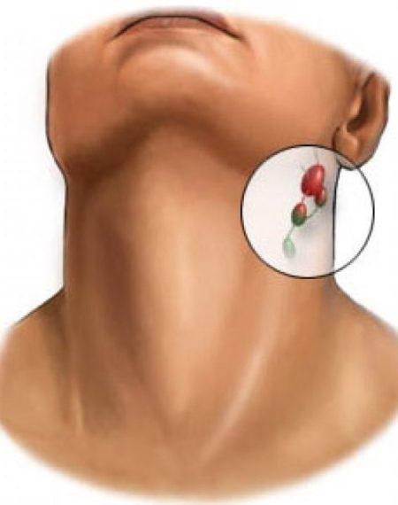 Воспаление лимфоузлов при шейном остеохондрозе