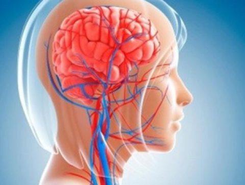 Вертебро-базилярная недостаточность на фоне шейного остеохондроза: причины, симптомы и лечение