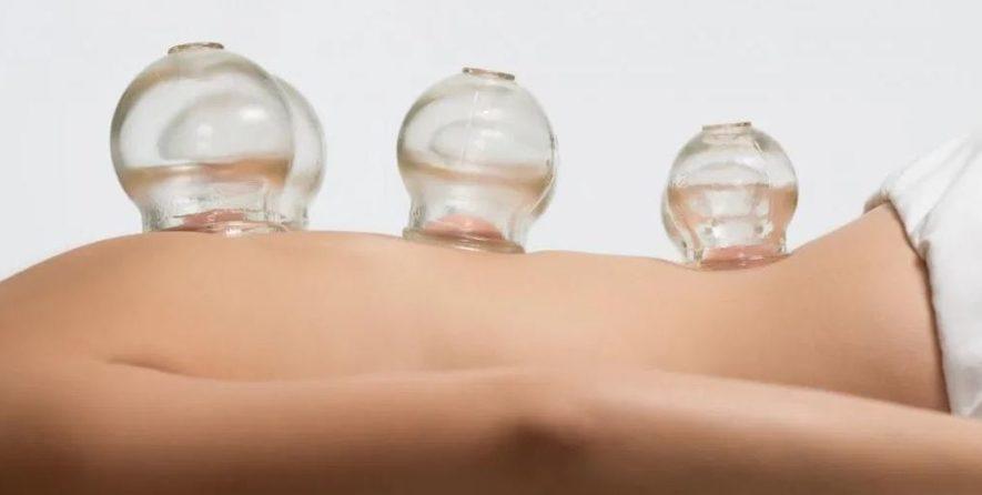 Статический вид ваккумного массажа