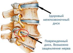 Защемление нерва и артериальное давление
