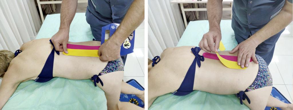Кинезиотейпирование при поясничном остеохондрозе