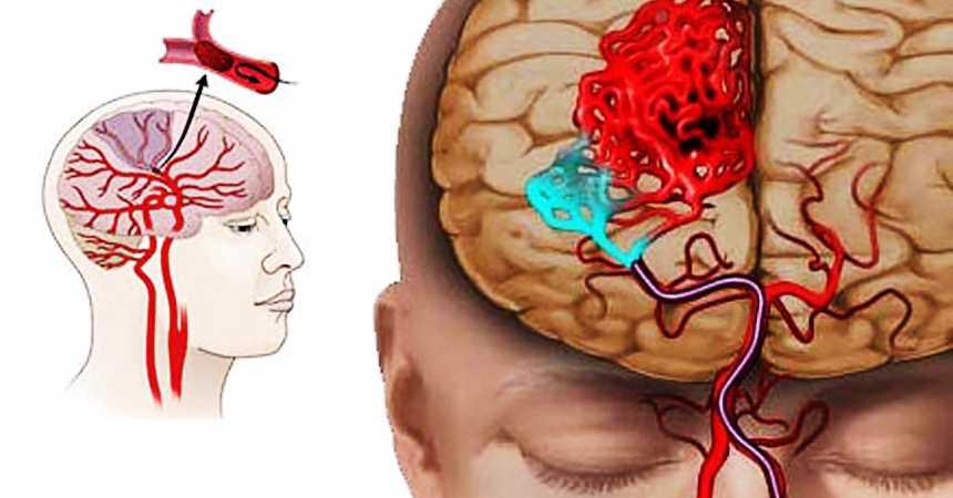 Риск ишемии и инсульта при шейном остеохондрозе