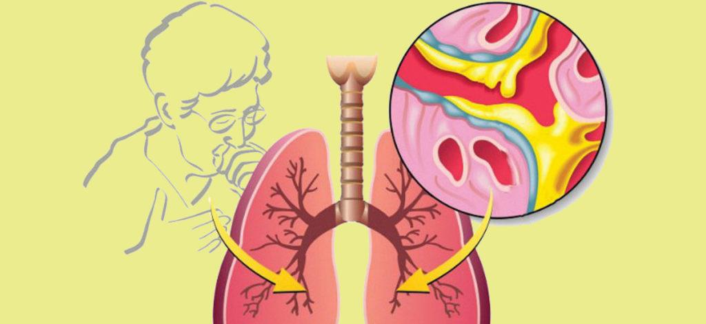 Кашель при заболеваниях легких