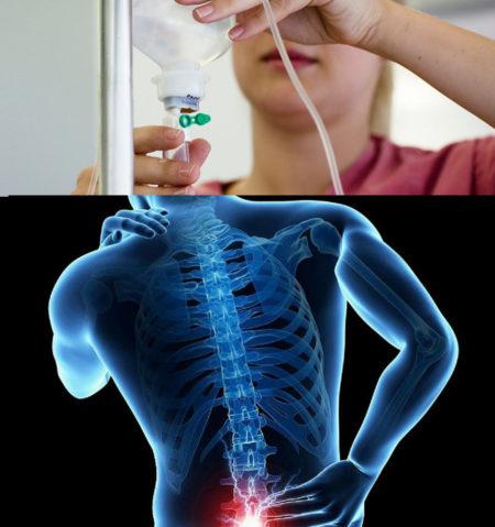 Капельницы при остеохондрозе