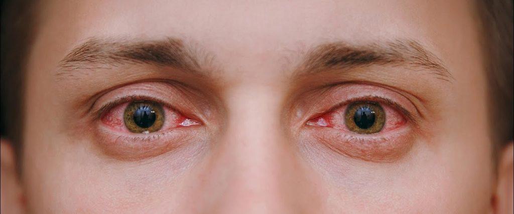 Покраснение глаз при шейном остеохондрозе