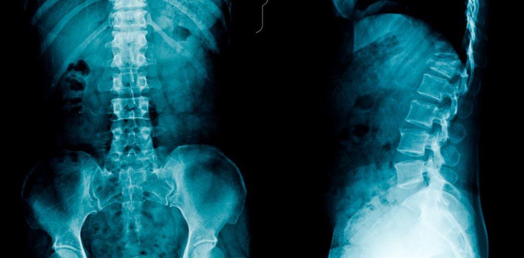 Остеохондроз пояснично-крестцового отдела на рентгене