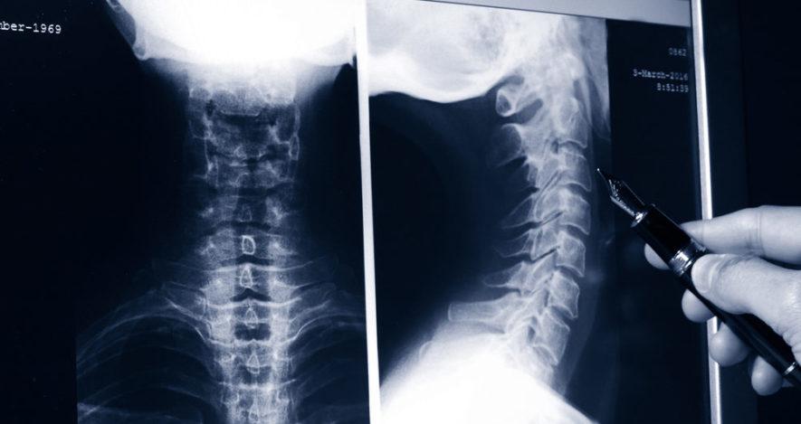 Шейный остеохондроз на рентгене