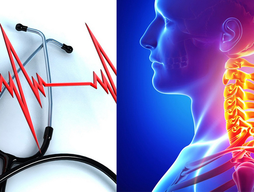Может ли быть аритмия от остеохондроза
