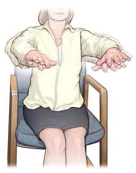 Тремор при остеохондрозе