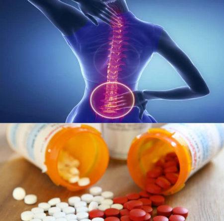 Какие обезболивающие принимать при остеохондрозе