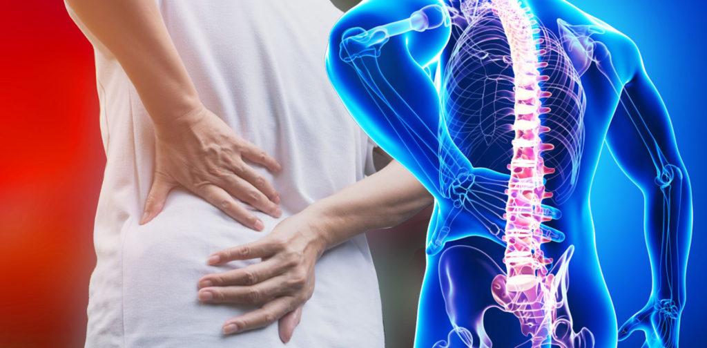 Отеки при остеохондрозе поясничного отдела