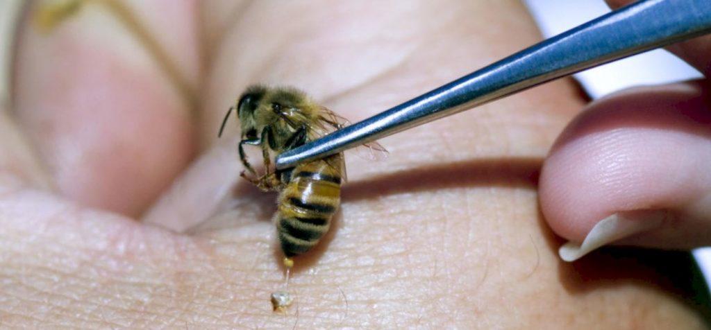В какие точки ставят пчел при апитерапии