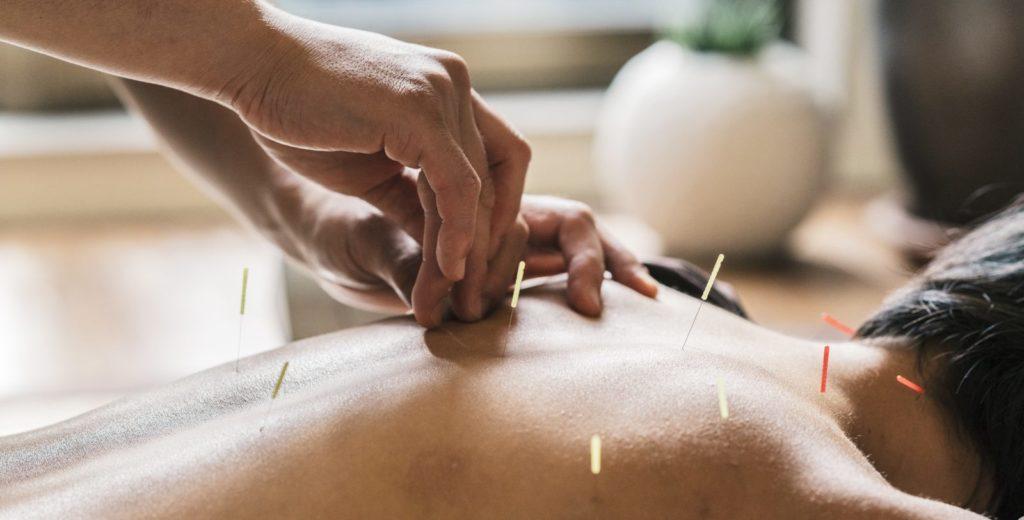 Процедура иглоукалывания при остеохондрозе
