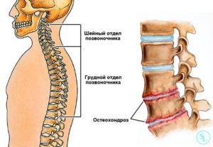 Остеохондроз грудного отдела 1 степени