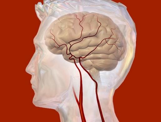 Может ли быть повышенное внутричерепное давление при остеохондрозе шейного отдела позвоночника