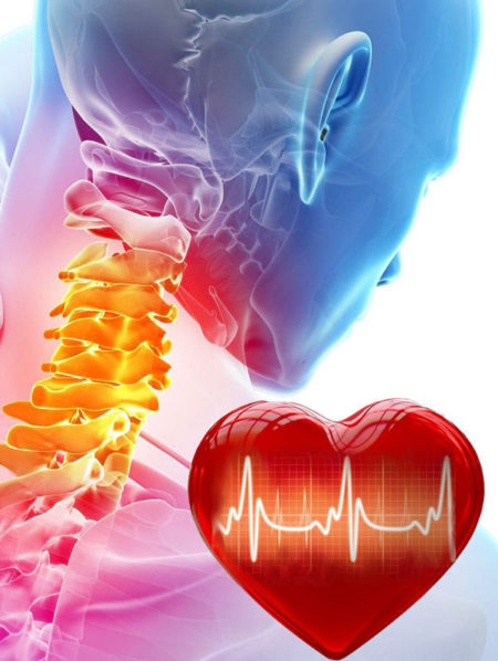 Связь экстрасистолии и остеохондроза
