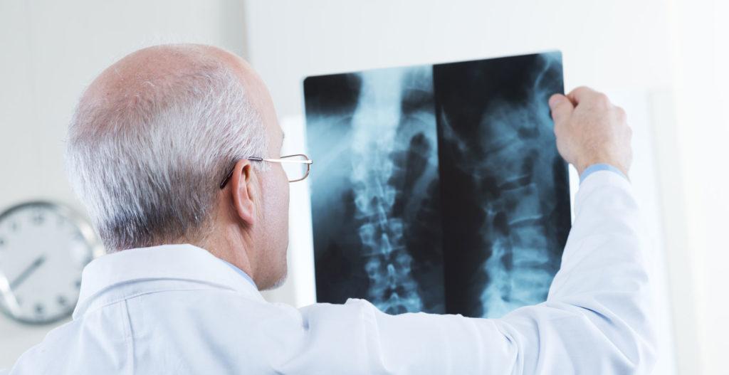 Диагностика грудного остеохондроза 2 степени