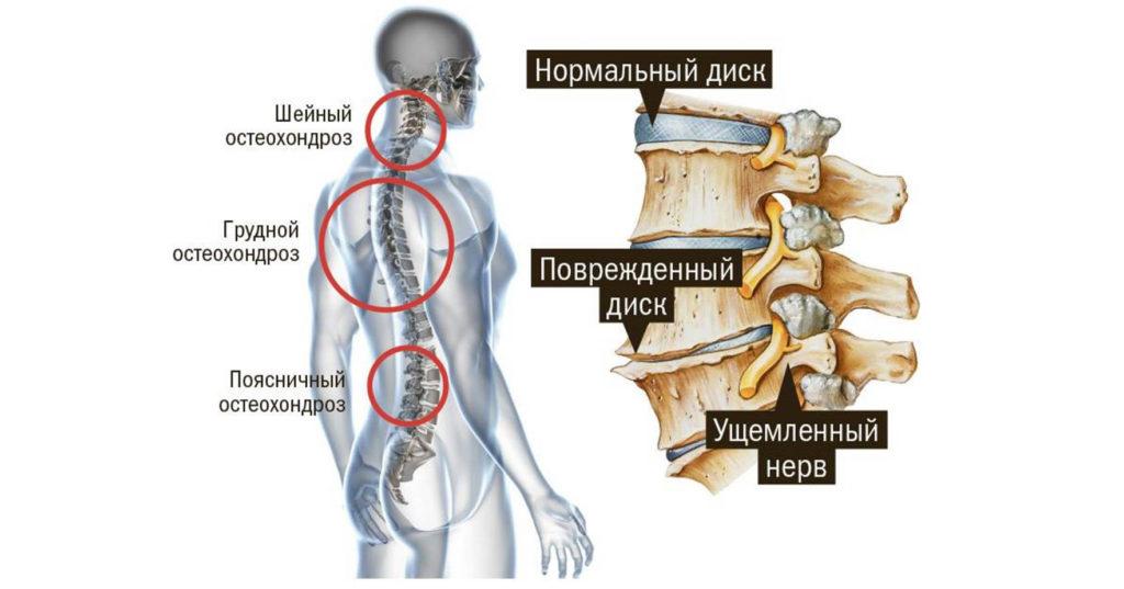 Что такое остеохондроз