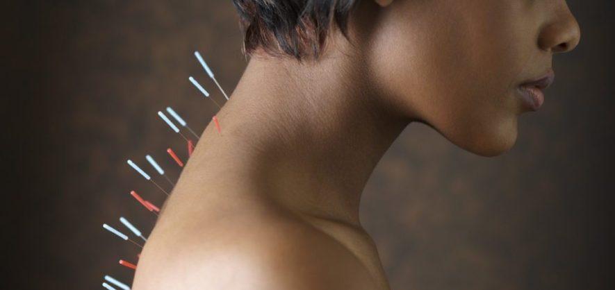 Иглоукалывание при остеохондрозе шеи