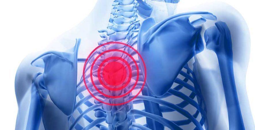Причины грудного остеохондроза 3 степени