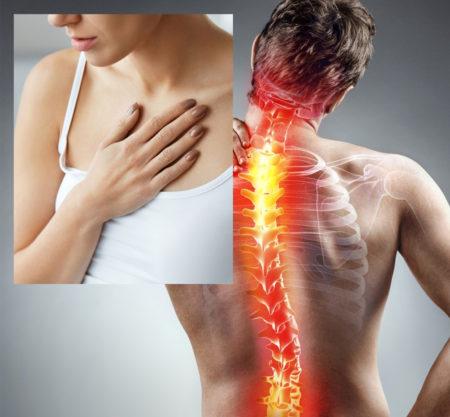 Боли в грудном отделе при остеохондрозе